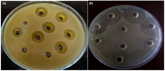 extraction of bacteriocin A method to assess bacteriocin effects on the gut microbiota of mice  the fecal dna extraction and 16s rdna sequencing methods are consistent and, together with .