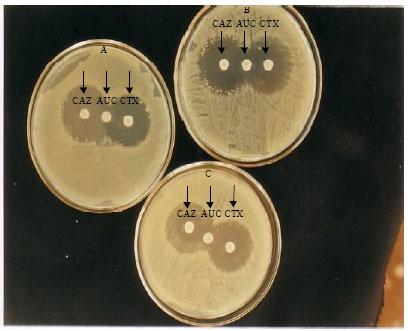 beta lectum antibiotic production