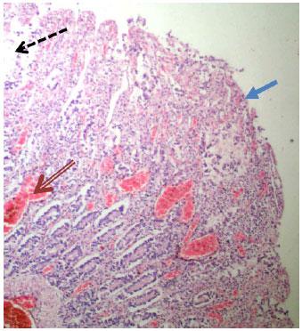 Cryptosporidium enteriitti: MedlinePlus Lääketieteellinen