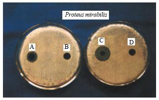proteus mirabilis hygienemaßnahmen