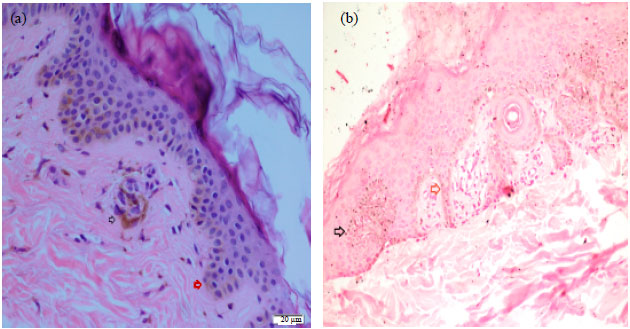 Case of Recurrent Type B Pigmentary Demarcation Lines in a