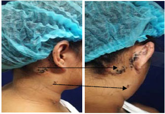 A Combined Approach to the Treatment of Nevus Comedonicus