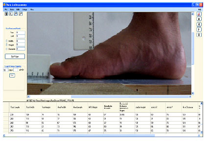 Foot Anthropometry Of 18 25 Years Old Iranian Male Students