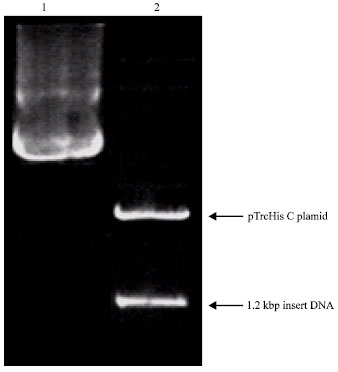 how to find lanes with recombinant plasmid