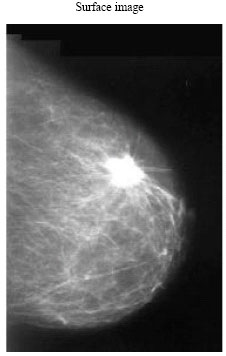 Mammogram Breast Cancer Image Detection Using Image