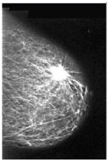 Mammogram Breast Cancer Image Detection Using Image Processing