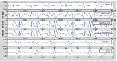 Fetal ECG Extraction using Softcomputing Technique
