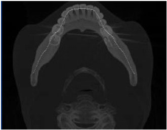 Fully Automatic Extraction of Panoramic Dental Images from