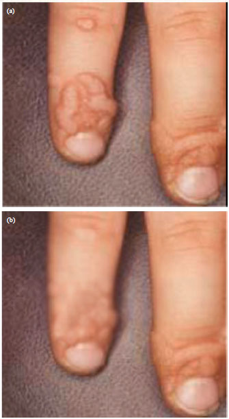 Miraculous Effect of Smoke of Pine Tree Fruit on Human Wart