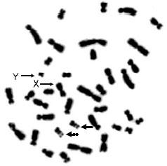 sex chromosomes and autosomes relationship quiz