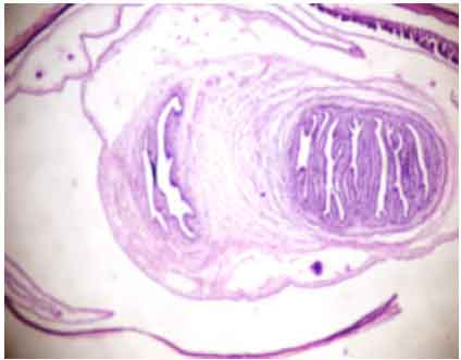 A discussion about parasitic characteristics of tapeworm