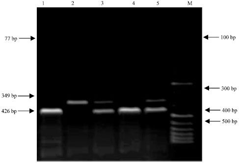 Image for - Allelic Frequencies of a SacII RFLP at Exon 7 of the β-lactoglobulin Gene in Turkish Hair Goat Breed
