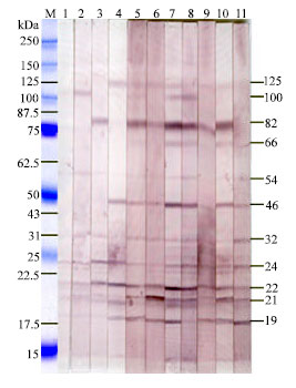 Image for - Cellular and Humoral Immune Responses and Antigen Recognition in Sprague-Dawley Rats Experimentally Infected with Brucella abortus Biotype 1