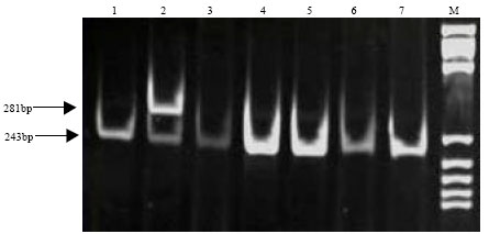 Image for - The Polymorphisms of β2-Adrenergic Receptor Gene on two Cattle Breeds in China