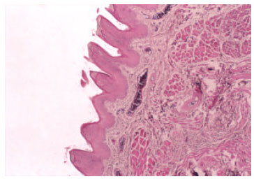 Image for - The Efficacy of Tarantula cubensis Extract (Theranekron) in Treatment of Canine Oral Papillomatosis
