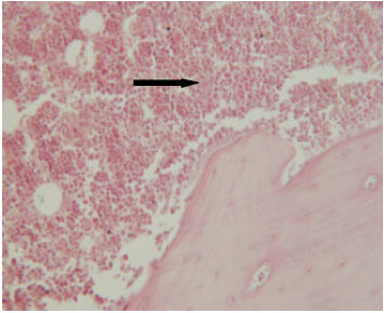 Image for - Leishmania major in Tatera indica in Fasa, Southern Iran: Microscopy, Culture, Isoenzyme, PCR and Morphologic Study