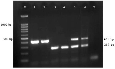 Image for - Detection of Arcobacter butzleri and Arcobacter cryaerophilus    in Clinical Samples of Humans and Foods of Animal Origin by Cultural and Multiplex    PCR Based Methods