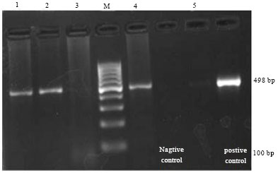 Image for - Serological and Molecular Detection of Brucella abortus    from Cattle by RBPT, STAT and PCR and Sample Suitability of Whole Blood    for PCR