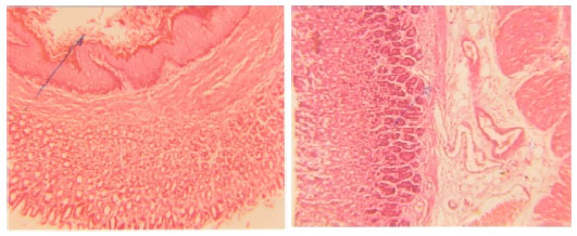 Image for - Antiulcer Effects of Alpha Lipoic Acid on Gastric Acid Secretion and Mucosal Defense Factors in Rats