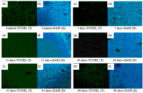 Image for - Prevention of Oxidative Damage of Liver, Kidney and Serum Proteins with Apoptosis of above Tissues in Guinea Pigs Fed on Carbonated Soft Drink by Vitamin C