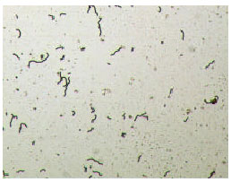 Image for - Effect of Lactobacillus lactis cremoris Isolated from Kefir against Food Spoilage Bacteria