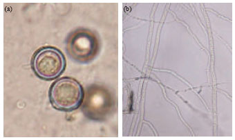 Image for - Identification and Controlling Pythium sp. Infecting Tomato Seedlings Cultivated in Jordan Valley using Garlic Extract