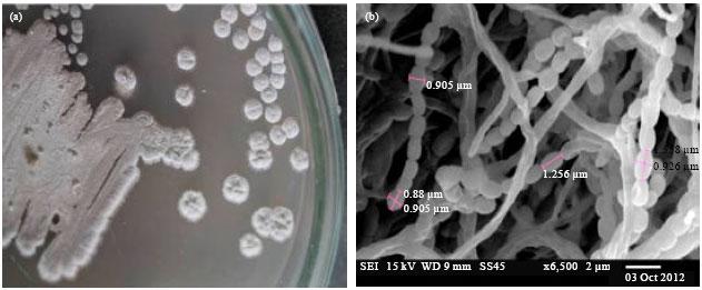 Image for - Molecular Characterization of Marine Streptomyces enissocaesilis Capable of L-asparaginase Production