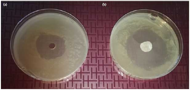 Image for - Antimicrobial Activity of Essential Oil Against Rhizobium (Agrobacterium) vitis Using Agar Well and Disc Diffusion Method