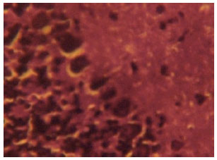 Image for - Some Histological Observations and Microstructural Changes in the Nissl Substances in the Cerebellar Cortex of Adult Wistar Rats following Artesunate Administration