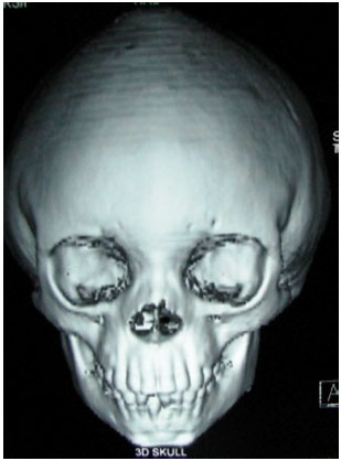 Image for - Crouzon Syndrome: A Case Report