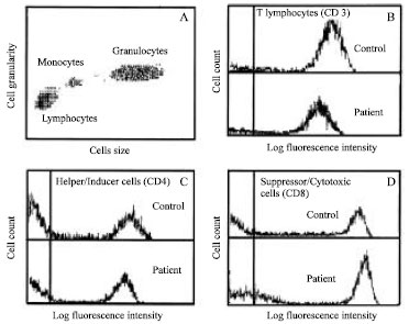 Image for - Flow Cytometric Analysis of Peripheral Blood T-lymphocyte Subsets in Colon Cancer