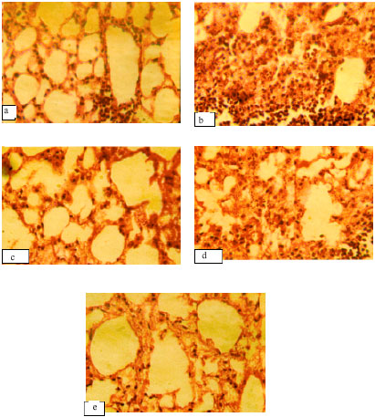 Image for - Protective Effect of Flavanoidal Fraction of Indigofera tinctoria  on Benzo (α) Pyrene Induced Lung Carcinogenicity in Swiss Albino  Mice