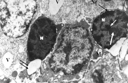 Image for - Tamoxifen and Melatonin Differentially Influence Apoptosis of Normal Mammary Gland Cells: Ultrastructural Evidence and p53 Expression