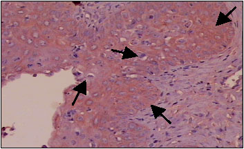 Image for - The Establishment and Use of an in vivo Animal Model for Cervical Intra-Epithelial Neoplasia
