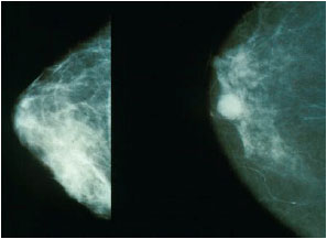 Image for - Risk Factors for Breast Cancer in Iranian Women: A Case-Control          Study