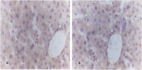 Image for - Histological and Immunohistochemical Studies for Evaluation of the Role of Microalgae Spirulina sp. Against Cancer in Experimental Animals