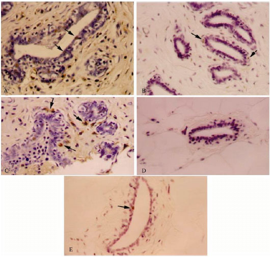 Image for - Protective Effect of Green Alage Against 7,12-Dimethylbenzanthracene (DMBA)-Induced Breast Cancer in Rats