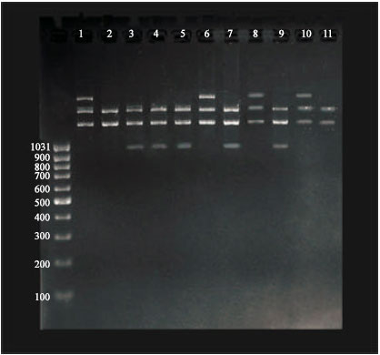 Image for - Detection of Novel Genomic Polymorphism in Acute Lymphoblastic Leukemia by Random Amplified Polymorphic DNA Analysis