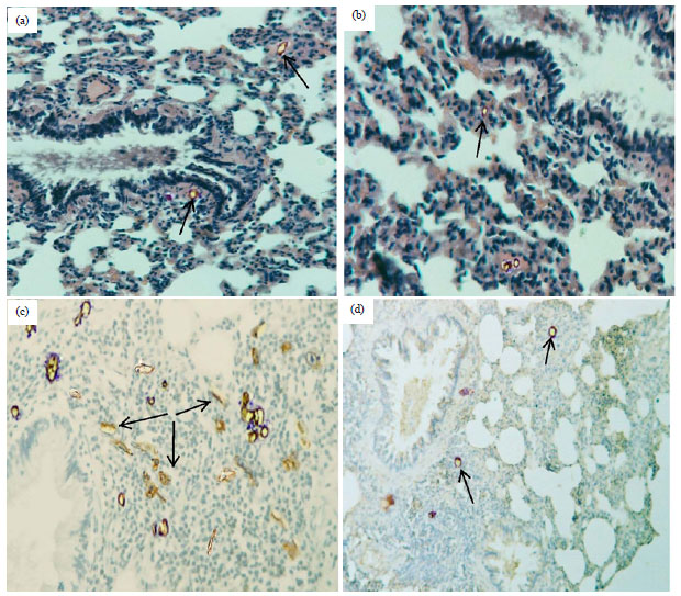 Image for - Anti-Angiogenic Effectiveness of the Pomegranate Against Benzo(a)Pyrene Induced Lung Carcinoma in Mice