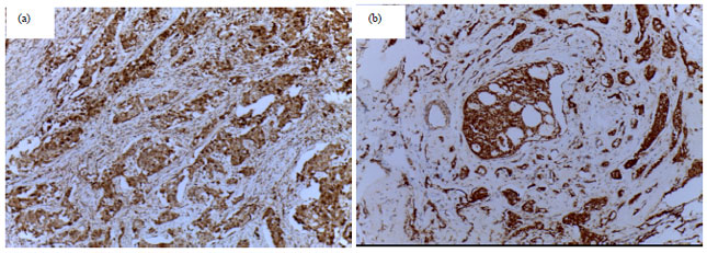Image for - Nuclear and Cytoplasmic Expression of Survivin in Breast Carcinoma: Correlation with Clinicopathological Parameters