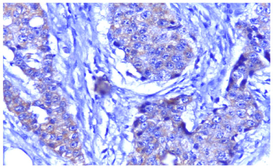 Image for - Expression of Vascular Endothelial Growth Factor Protein in Both Serum Samples and Excised Tumor Tissues of Breast Carcinoma Patients