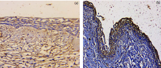Image for - Immunohistochemical Analysis of Nf-κB Expression and its Relation to Apoptosis and Proliferation in Different Odontogenic Tumors