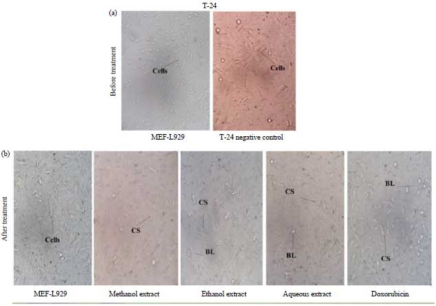 Image for - Evaluation of in vitro Antioxidant and Anticancer Activity of Tabernaemontana divaricata Leaf Extracts Against T-24 Human Bladder Cancer Cell Lines