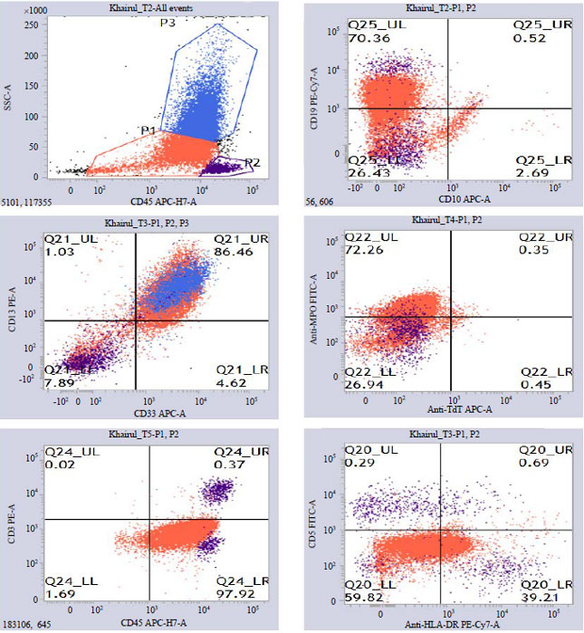Image for - Expression of Aberrant Antigens in Adult Acute Leukemia: A Study in Bangladesh