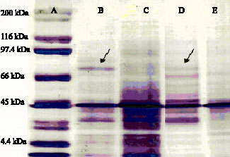 Image for - Production of Hydroxamate-Type of Siderophores by Rhizobium strains          from Sesbania sesban (L.) Merr.