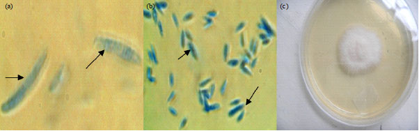 Image for - Occurrence of Arbuscular Mycorrhizal Fungi and Fusarium in TC Banana Rhizosphere Inoculated with Microbiological Products in Different Soils in Kenya