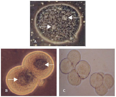 Image for - Detection of Hepatitis B Polymerase Gene in Early Embryonic Cells from Golden    Hamster Oocyte and Human Spermatozoa Carrying HBV DNA