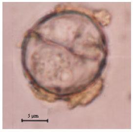Image for - A New Coccidian Parasite (Eimeria farasanii n. sp.) Indicates Parasite-Host Specificity in Endemic Farasan Gazelle