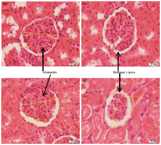 Image for - Berberine Improves Kidney Injury Following Renal Ischemia Reperfusion in Rats