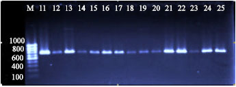 Image for - Development of Polymerase Chain Reaction and Dot Blot Hybridization to Detect Escherichia coli Isolates from Various Sources